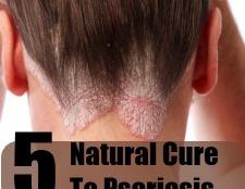 5 remède naturel simple pour le psoriasis