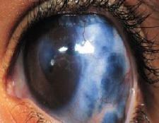 5 conseils sur la façon de prévenir le glaucome