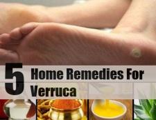 5 Divers remèdes maison pour les verrues