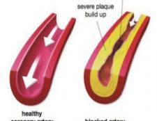5 vitamines pour une élasticité accrue dans les artères