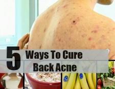 5 façons de guérir l'acné dos