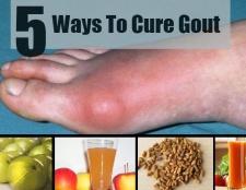 5 façons de guérir la goutte