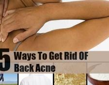 5 façons de se débarrasser de l'acné dos