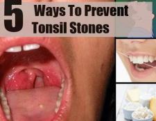 5 façons de prévenir les pierres de l'amygdale
