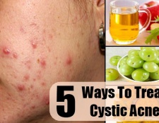 5 façons de traiter l'acné kystique
