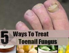 5 façons de traiter champignon de l'ongle
