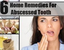 6 meilleurs remèdes maison pour l'abcès dentaire