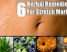 6 remèdes efficaces pour les vergetures