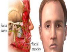 6 Un traitement efficace homéopathique pour hémiplégie