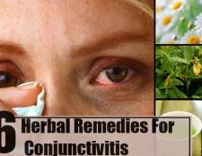6 remèdes à base de plantes pour la conjonctivite