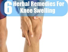 6 remèdes à base de plantes pour le gonflement du genou