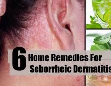 6 Accueil recours pour la dermatite séborrhéique