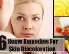 6 Accueil recours pour la décoloration de la peau