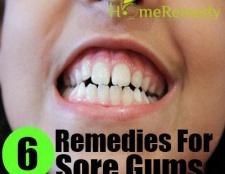 6 Accueil recours pour les gencives douloureuses