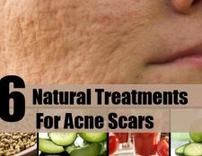 6 Scar, supprimer les traitements naturels pour les cicatrices d'acné