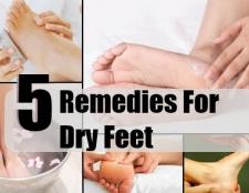 6 remèdes maison simples pour les pieds secs