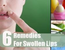 6 remèdes maison simples pour les lèvres gonflées