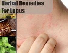 7 remèdes surprenantes pour le lupus
