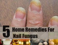 7 meilleurs remèdes pour la mycose des ongles