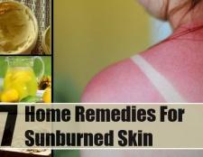7 remèdes efficaces à domicile pour la peau brûlée par le soleil