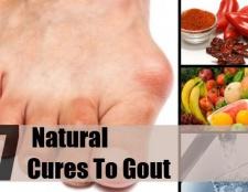 7 remèdes naturels efficaces pour la goutte