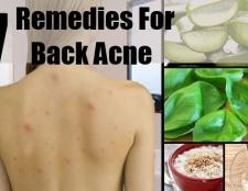 7 Les remèdes maison pour l'acné de retour