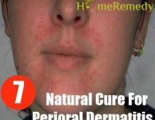 7 remède naturel pour la dermatite périorale