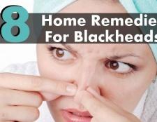 8 remèdes maison étonnants pour les points noirs