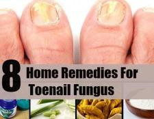8 meilleurs remèdes maison pour mycose des ongles