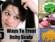 5 façons de traiter les démangeaisons du cuir chevelu