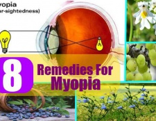 8 remèdes les plus efficaces pour la myopie