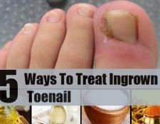 5 façons de traiter ongle incarné