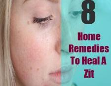 Top 8 des remèdes maison pour guérir un zit