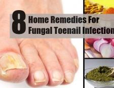 8 précieux remèdes maison pour une infection fongique des ongles