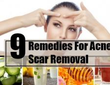 9 Les remèdes maison pour l'enlèvement des cicatrices d'acné