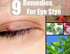 9 Accueil recours pour étable d'oeil