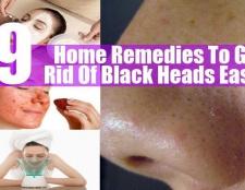 9 Les remèdes maison pour se débarrasser des points noirs facilement