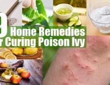 Top 9 des remèdes maison pour guérir poison ivy