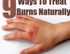 9 façons de traiter les brûlures naturellement