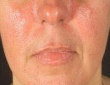 Changement de régime pour guérir le lupus