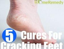 Remèdes naturels efficaces pour les pieds craquage