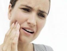 Remèdes pour la douleur des gencives