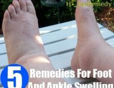 Accueil recours pour pied et la cheville gonflement
