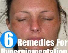 Comment se débarrasser de l'hyperpigmentation naturellement