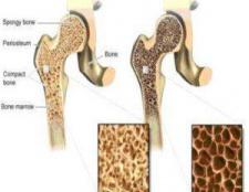 Comment traiter l'ostéoporose
