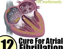 Remède naturel pour la fibrillation auriculaire