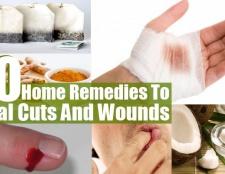 Top 10 des remèdes maison pour guérir les coupures et blessures