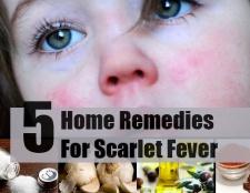 Top 5 des remèdes maison pour la scarlatine