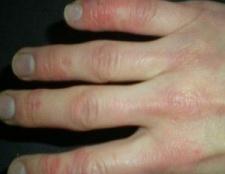 Top 5 des remèdes maison pour la sclérodermie