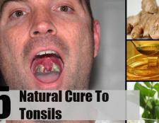 Top 5 des remèdes naturels pour les amygdales